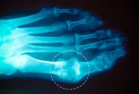 Подагра: рентген