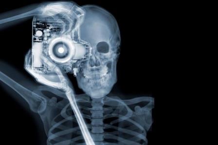 Рентгеновское излучение – это форма электромагнитного излучения.