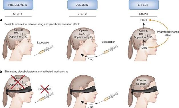 Рисунок 4. Взаимосвязь между плацебо / ожиданием и действием препарата. (А) Когда пациент видит шприц, или любое другое медицинское устройство, его мозг начинает активацию механизмов плацебо / ожидания, таких как выпуск опиоидов, дофамина и холецистокинина (CCK) (этап 1). Затем вводят препарат (шаг 2). Его действие может быть связано с его фармакодинамической природой и / или с взаимодействием с механизмами, активируемыми ожиданием (шаг 3). В этой ситуации, невозможно точно сказать, какой из этих двух механизмов мы наблюдаем. (b) Если механизмы плацебо / ожидания устраняются при помощи скрытого (неожиданного) введения плацебо, тогда любой наблюдаемый эффект, вероятно, будет связан со специфическим фармакодинамическим действием самого лекарственного средства, поскольку механизмы ожидания больше не присутствуют.