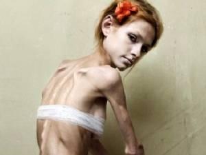 Модель, больная анорексией