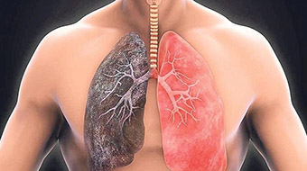 Применение ацетилцистеина при хронической обструктивной болезни легких