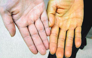Побочные эффекты бета-каротина