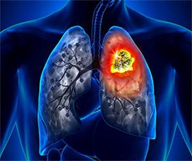 Бета-каротин и рак легких у курильщиков