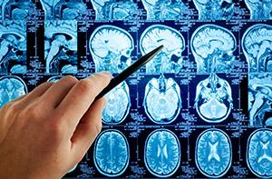 Босвеллия: неврология