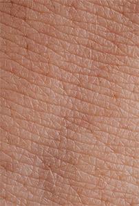 Влияние бутеи односемянной на кожу