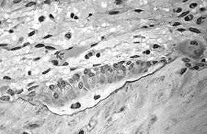 Влияние бутеи односемянной на синтез остеокластов