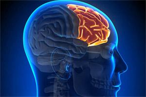 Лобно-височная деменция (FTD) представляет собой деменцию, которая характеризуется радикальными изменениями личности и затрудненностью речи