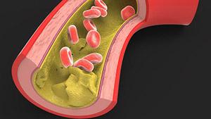 Гидрокортизон (Кортизол) синтезируется из холестерина