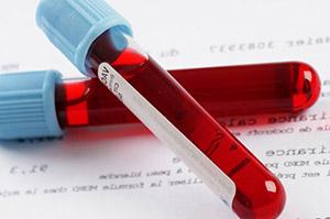Гипогонадизм: анализ крови
