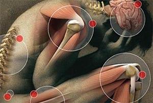 Хлорелла: фибромиалгия