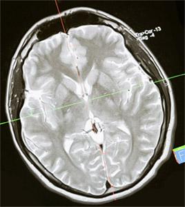 Кава: влияние на мозг