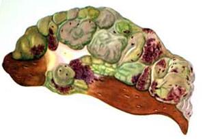 Кордицепс: злокачественная гепатома