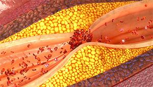 Lactobacillus reuteri: холестерин