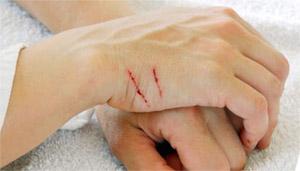 Лихорадка от кошачьих царапин