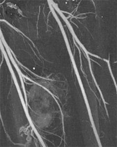Мезентериальный тромбоз: ангиография