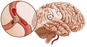Эффекты моксонидина на церебральный вазоспазм после экспериментального субарахноидального кровоизлияния