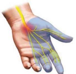 Диабетическая невропатия – это повреждения нервов, связанные с сахарным диабетом.