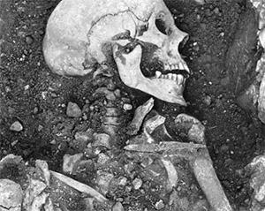 Самые ранние достоверные клинические признаки оспы можно обнаружить в медицинской литературе из древней Индии