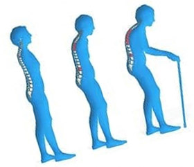 Остеомаляция представляет собой размягчение костей