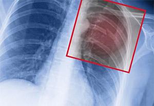 Перелом кости: осложнения