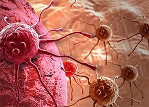 Рак (Злокачественная опухоль)