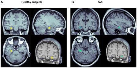 Значительно усиленное (желтый) и ослабленное rCBF (кровоснабжение головного мозга) в левой области гиппокампа у здоровых испытуемых(A) и у лиц с социальным тревожным расстройством(SAD; B) после применения КБД vs. плацебо.