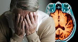 Шафран: болезнь Альцгеймера