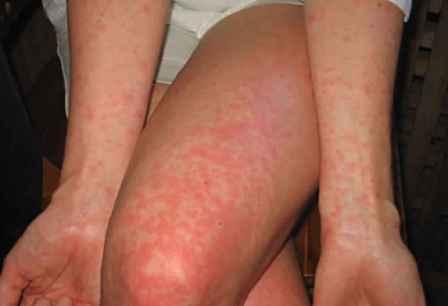 Характерная сыпь - один из симптомов лихорадки денге.