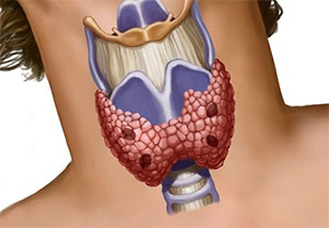 Гормоны щитовидной железы (тиреоидные гормоны)