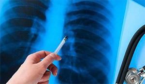 Туберкулез: управление