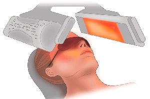 Фототерапия считается лечением витилиго второй линии