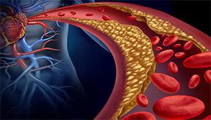 Ямабушитаке: липиды и холестерин